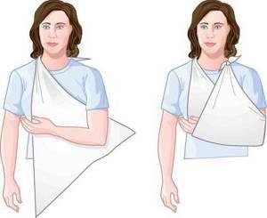 Как накладывать повязку при переломе