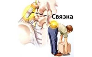 Сорвал спину: первая помощь, причины, симптомы, как лечить растяжение, профилактика травм