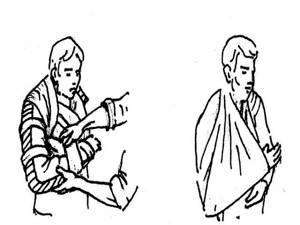 Шина Дитерихса: назначение и устройство конструкции, показания к применению, правила наложения при переломах разных частей тела и особенности транспортировки