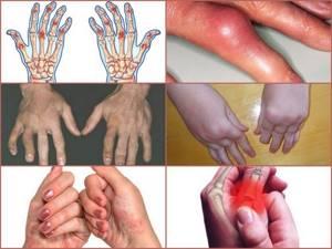 Флостерон: особые указания, побочные эффекты и передозировка, инструкция по применению, цена и отзывы пациентов