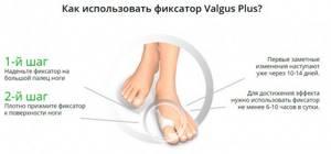 Корректор valgus plus (Вальгус Плюс) для большого пальца: что собой представляет, показания и противопоказания для использования, обоснование лечебного действия и отзывы покупателей, инструкция по применению