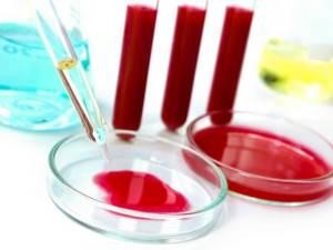 Диагностика подагры: какие анализы необходимо сдавать, проведение клинических и лабораторных исследований, рентгенограмма и расшифровка результатов