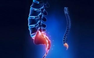 Спондилез пояснично-крестцового отдела позвоночника: причины и признаки развития патологии, диагностика и методы лечения патологии, прогноз и лечебная физкультура