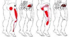 Боль в ягодице, отдающая в ногу: первая помощь, причины и симптомы, диагностика и лечение заболевания