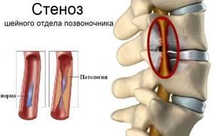 Сужение сосудов шейного отдела позвоночника: причины спазма, основные симптомы и стадии клинической картины, методы диагностики и лечения, профилактика болезни