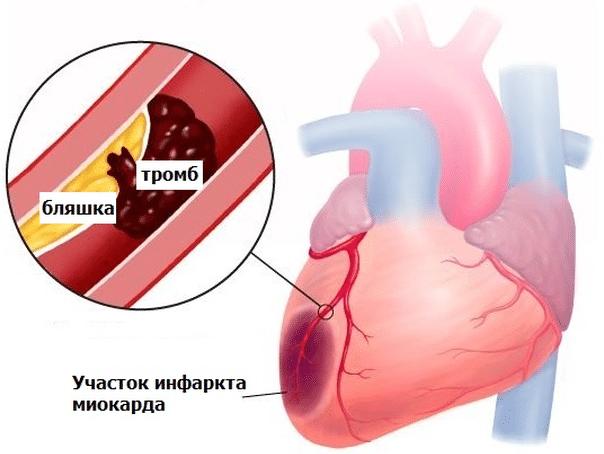 Боль в грудном отделе позвоночника: главные причины болевых ощущений, диагностические мероприятия, способы лечения и профилактики
