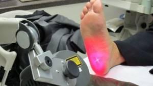 Лечение пяточной шпоры рентгенотерапией: суть метода, особенности и правила проведения сеансов, показания и противопоказания, цены и отзывы пациентов