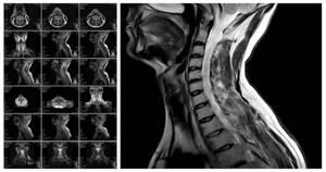 Дорсопатия шейного отдела позвоночника: виды и причины развития патологии, клиническая картина и методы диагностики, консервативное лечение и профилактические мероприятия