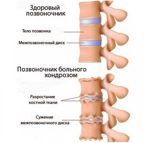 Почему возникает хондроз спины: основные причины, механизм развития, признаки заболевания, диагностические мероприятия и способы лечения