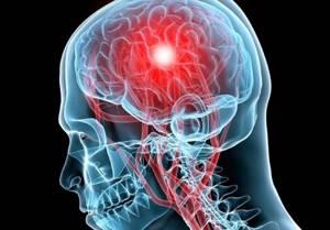Остеома лобной пазухи: причины, симптомы, диагностика и хирургическое лечение, восстановление после операции и меры профилактики