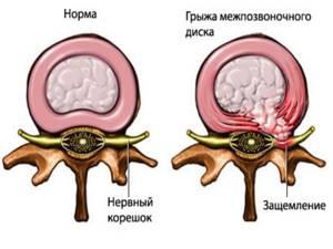 Вертеброгенная люмбоишиалгия справа и слева: как проявляется, признаки, способы диагностики, лечение и профилактика, возможные осложнения