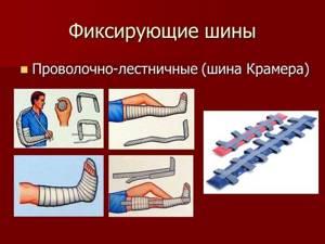 Шина при переломах: как накладывается, правила наложения и фиксации при открытом и закрытом переломе