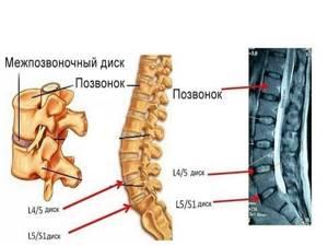 Грыжа диска l5-s1: причины появления и виды патологии, основные симптомы и методы диагностики, консервативные методы лечения и показания к операции, меры профилактики