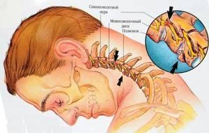 Тетрапарез: причины и виды патологии, клиническая картина и методы диагностики, лечение медикаментами и физиотерапевтические мероприятия, возможные осложнения и прогноз