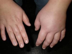 Рентген руки: эффективные методы исследования для постановки диагноза, что показывает и как проходит обследование, кому противопоказана диагностика