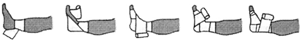 Эластичный бинт при растяжении голеностопа: как выбрать и бинтовать правильно, способы наложения повязки и особенности эксплуатации, плюсы и минусы использования