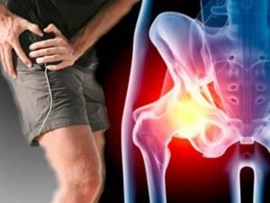 Растяжение паховых связок: причины, симптомы, первая помощь при травме, народная и официальная медицина