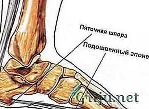 Пяточная шпора: причины недуга и симптоматика патологии, медикаментозные и народные методы лечения, эффективность лечебной физкультуры и стелек