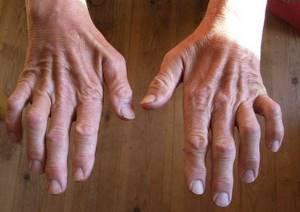 Сустав Шарко: провоцирующие факторы и причины развития патологии, первые признаки и основные симптомы, стадии и методы лечения заболевания, возможные осложнения и прогноз
