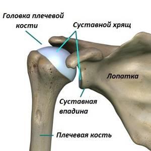 Остеопороз плечевого сустава: причины и признаки заболевания, медикаментозные и физические методы лечения, народные рецепты для борьбы с недугом