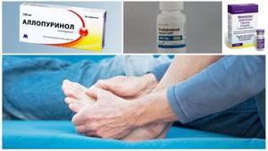 Лечение подагры препаратами, выводящими мочевую кислоту: основные принципы терапии, обзор медикаментозных средств, показания и противопоказания