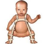 Дисплазия тазобедренных суставов у детей и взрослых: причины и симптомы возникновения патологии, провоцирующие факторы и методы дианостики, лечение заболевания медикаментами и показакния для операции