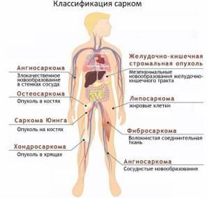 Саркома Юинга: виды и причины возникновения заболевания, клинические симптомы и методы диагностики, лечебные мероприятия и восстановительный период, прогноз для жизни