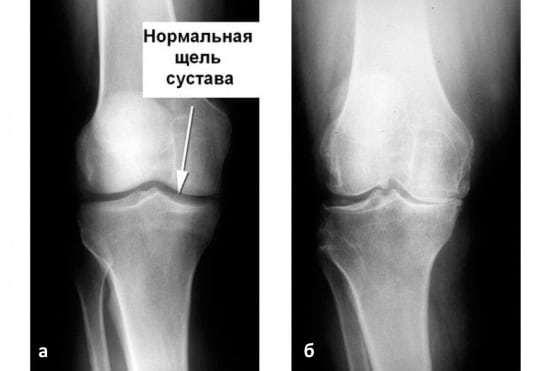 Болят колени после бега: основные причины неприятных ощущений, лечение и профилактика заболеваний суставов