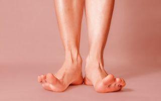 Ноги колесом у ребенка: осложнения и последствия, причины деформации и симптомы, методы лечения и профилактики, ортопедические варианты