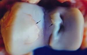 Остеохондроз тазобедренного сустава: причины и симптоматика патологии, клиническая картина и методики лечения заболевания, факторы риска
