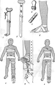 Транспортная иммобилизация при переломе бедра: особенности и цель процедуры, какие суставы подлежат фиксации, порядок и техники наложения шин