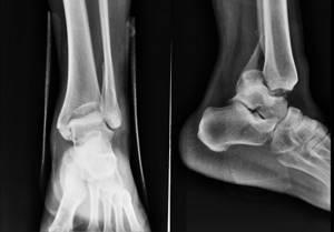 Рентген голеностопного сустава: показания и противопоказания к исследованию, подготовительный этап и техника проведения процедуры, информативность методики