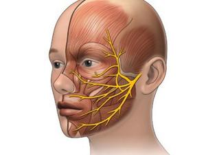 Невралгия: виды патологии, провоцирующие факторы и причины ее развития, специфические симптомы и дигностика, современные и народные методы лечения, профилактика и прогноз