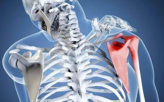 Остеохондроз плечевого сустава: чем опасно заболевание, как проявляется, диагностика, основные методы лечения медикаментозными препаратами и народными средствами