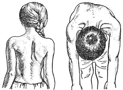 Грудопоясничный сколиоз: причины и степени заболевания, симптомы, методы диагностики, лечение в зависимости от искривления и комплекс упражнений для профилактики