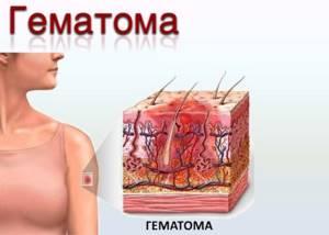 Вскрытие гематомы и другие методы ее устранения: классификация по характеру повреждения и скопления крови, диагностика и лечение