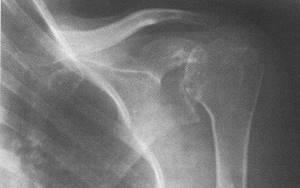 Лечение асептического некроза головки плечевой кости: механизм развития заболевания, признаки, особенности диагностики, терапия и профилактика