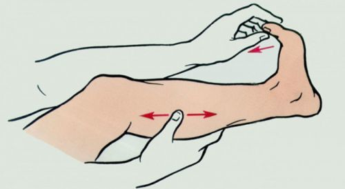 Спазм мышц бедра: основные причины и характерные признаки судорог, методы диагностики и правила оказания первой помощи, лечебные мероприятия и меры профилактики