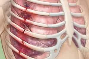 Перелом ребер: причины и классификация травмы, методы диагностики и клинические симптомы, первая помощь и особенности лечения, реабилитационный период и осложнения