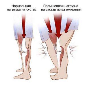 Болит колено при подъеме по лестнице: признаки и последствия, возможные заболевания и способы снятия болевого синдрома, первая помощь и последующая терапия, народные рецепты и массаж