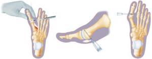 Вальгусная деформация большого пальца стопы (hallux valgus): причины и механизм развития патологии, симптомы и методы диагностики, современные и народные методы лечения