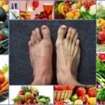 Тыква при подагре: помогает ли, полезные свойства и как правильно готовить, общие принципы диеты, рецепты на каждый день