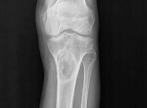Саркома коленного сустава: причины возникновения, стадии, симптомы, методы диагностики, лечение с помощью хирургического вмешательства и химиотерапии