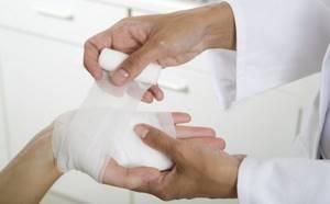 Гигрома стопы: как выглядит и почему появляется, способы терапии и показания к удалению, народные методы и опасность заболевания