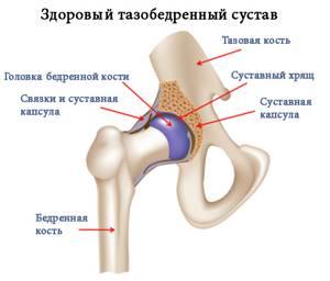 Хруст в тазобедренном суставе: возможные патологии, чем это опасно и что делать, способы диагностики и лечения