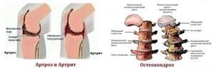 Каланхоэ для лечения суставов: полезные свойства растения, рецепты приготовления целебных средств и способы их применения, противопоказания к использованию