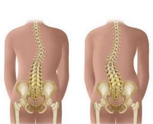 Остеопороз отделов позвоночника: признаки и причины заболевания, этапы развития и диагностика, лечебные методы и способы