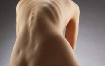 Сколиоз грудного отдела позвоночника: этиология заболевания и клиническая картина, симптомы и признаки патологии, методы терапии и профилактика осложнений