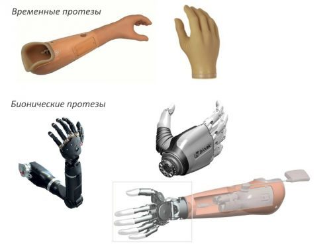 Выбираем протез руки: виды и характеристики изделий, их достоинства и недостатки, критерии выбора и важные рекомендации, отзывы пациентов