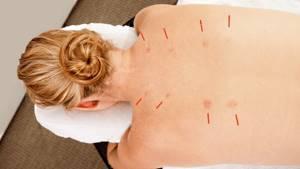 Иглоукалывание при остеохондрозе шейного отдела: принцип действия, особенности процедуры, показания и противопоказания для проведения сеанса, рекомендации и отзывы